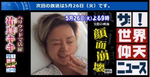 祐真キキの今現在の病気(顔面麻痺)の容態は手術して完治に向かっている?【仰天ニュース】